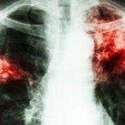 30 de nemţeni au murit anul trecut de tuberculoză. Astăzi, Ziua Mondială a Tuberculozei